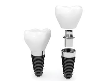 implantd