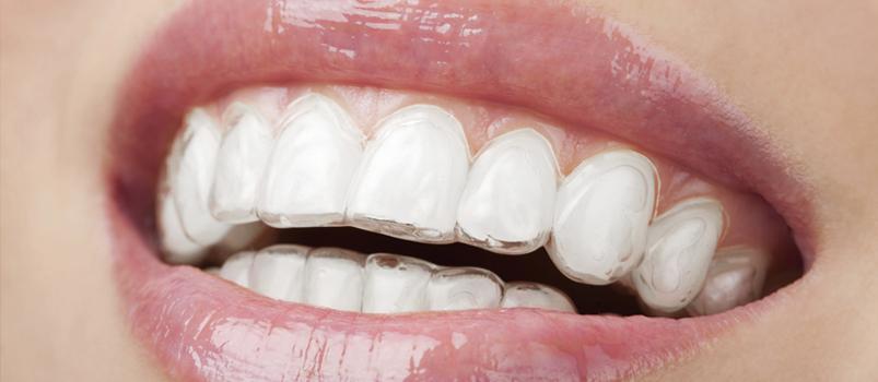 aparat dentar invisalign free