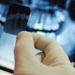 Sunt importante radiografiile dentare?