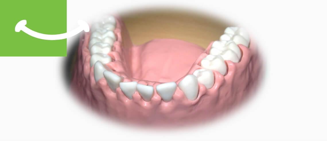 Dreossi Dental - Parodontologie